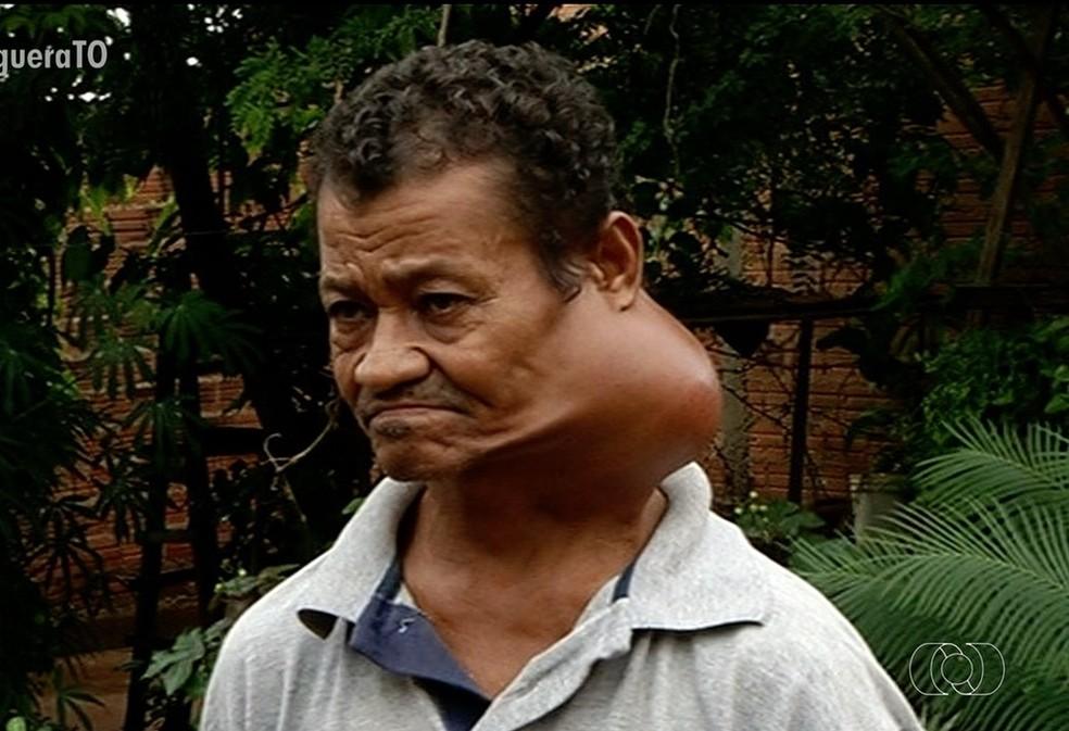 Aposentado com nódulo grande no pescoço não consegue cirurgia e chora: 'Dói demais'